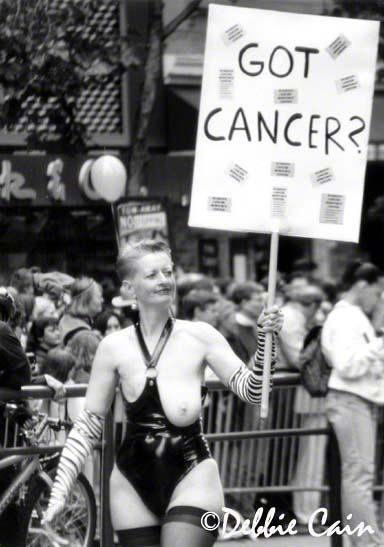 Got Cancer?
